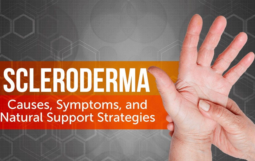 Natural Treatment of Scleroderma